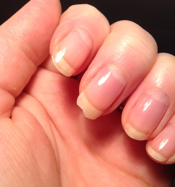 Broken nails are bound to happen no matter what product you use.