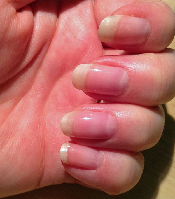 My nails with rounded tips